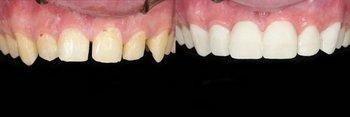 Porcelain Veneers Patient Before and After