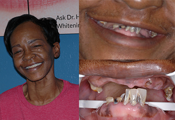 Smile Enhancement Tooth Before and After