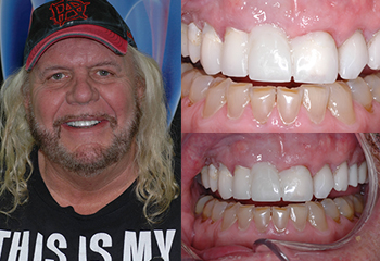 Dental Crowns Patient Before and After