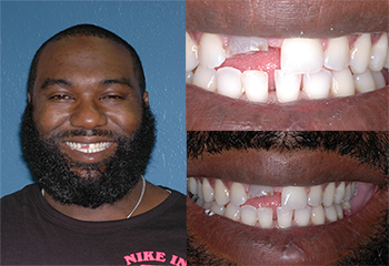 Front Discolored Tooth Before and After