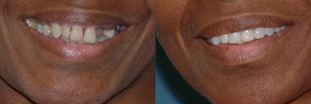 Dental Implants Patient Before and After