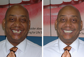 Front Bridge To Replace Missing Teeth Patient Before and After