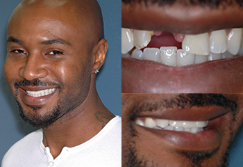 Dental Bridge Patient Before and After
