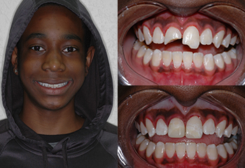 Patient w/ Brooken Tooth Before and After