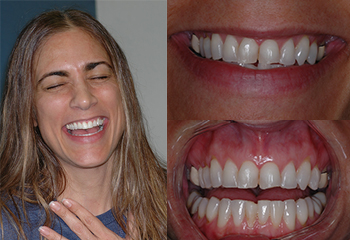 Veneers3 Before and After
