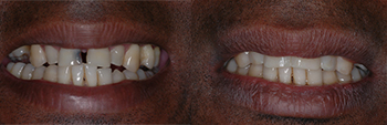 Veneers2 Before and After