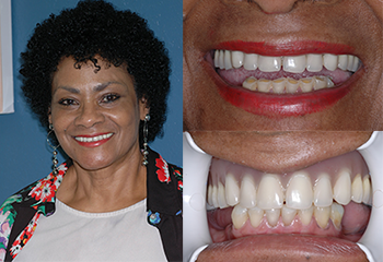 Veneers and Denture Patient Before and After