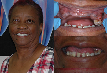 Upper Denture Patient Example2