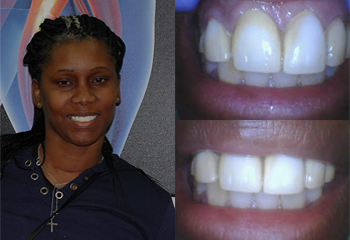 Smile Anterior Enhancement Before and After