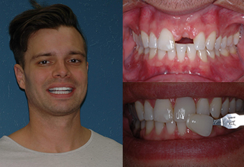 Veneer & Implants Enhancement Before and After