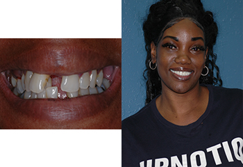 Implant Supported Denture Before and After