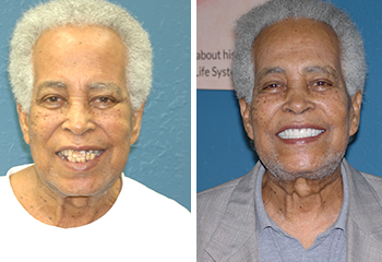 Smile Enhancement w/ Dentures Before and After