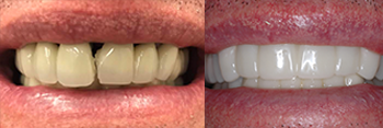 Veneers Patient Before and After